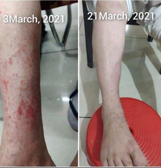 leg before after wheatgrass